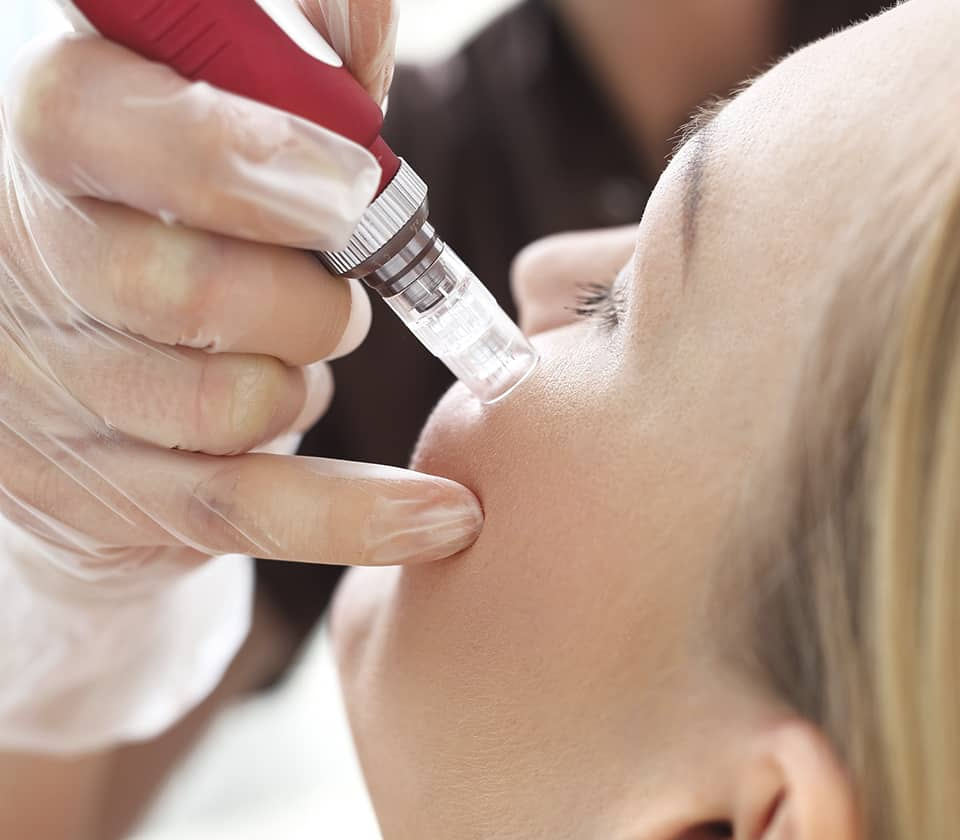 PRP Facial Rejuvenation Treatment in NYC