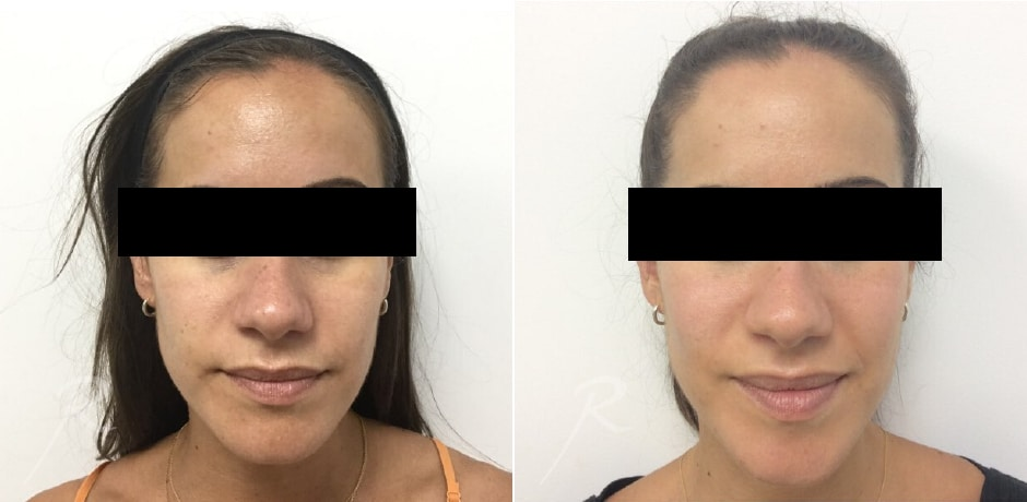 Clear and Brilliant Before and After Treatment - Russak+ Aesthetic Center in New York