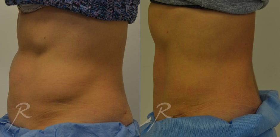 CoolSculpting Before and After Treatment - Russak+ Aesthetic Center in New York