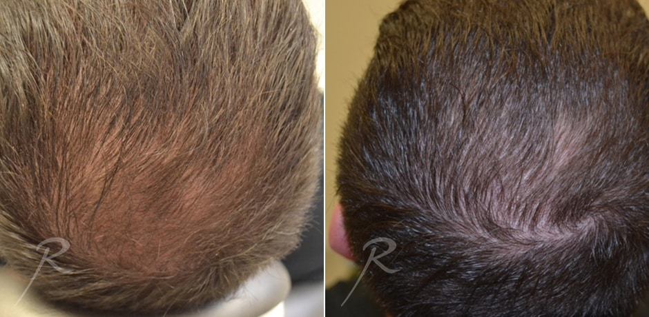 Hair Growth and Restoration - Russak+ Aesthetic Center in New York
