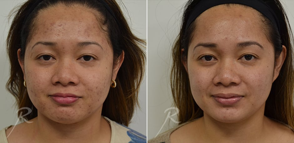 Microneedling Before and After Treatment - Russak+ Aesthetic Center in New York