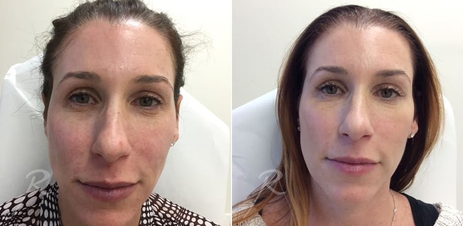 RF Needling Before and After Treatment - Russak+ Aesthetic Center in New York