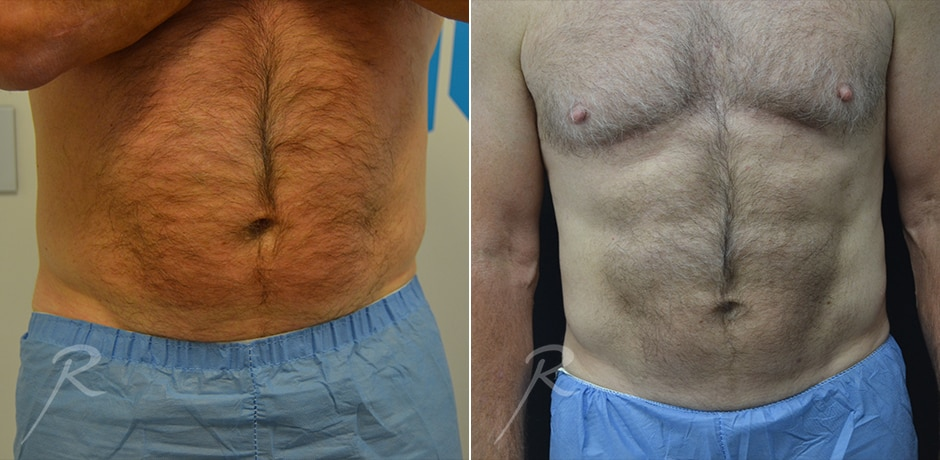 Coolsculpting For Men Before and After Treatment