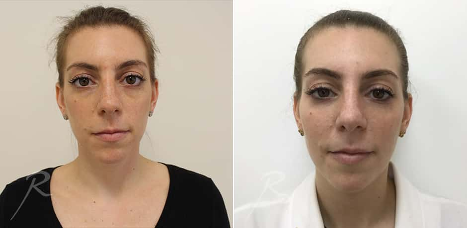 Full-Face Rejuvanation - Before and After Treatment Picture