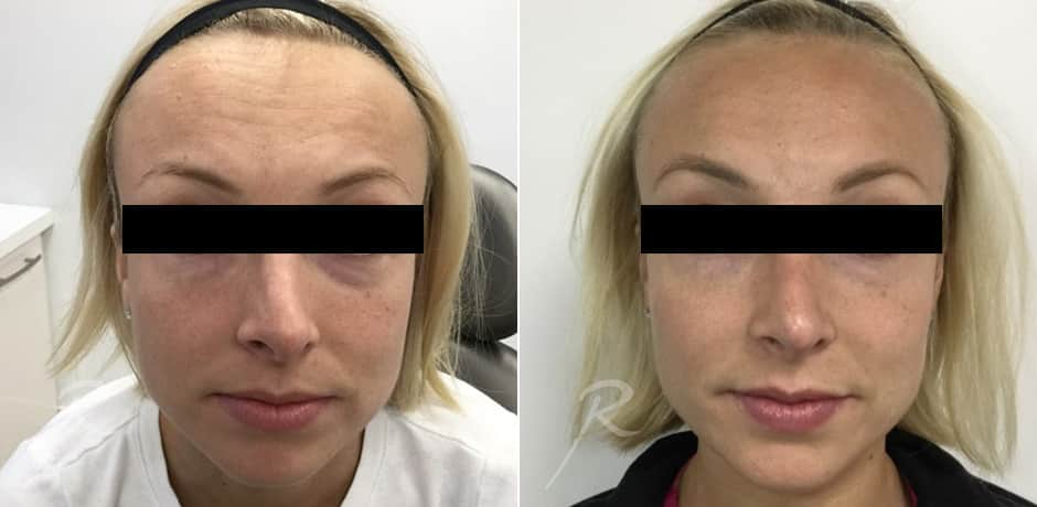 Injectables for Chin or Nose - Before and After Treatment