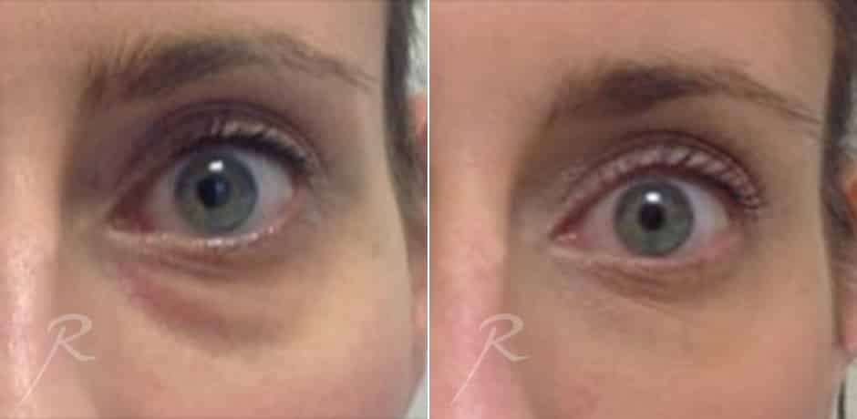Injectables for Eyes - Before and After Treatment