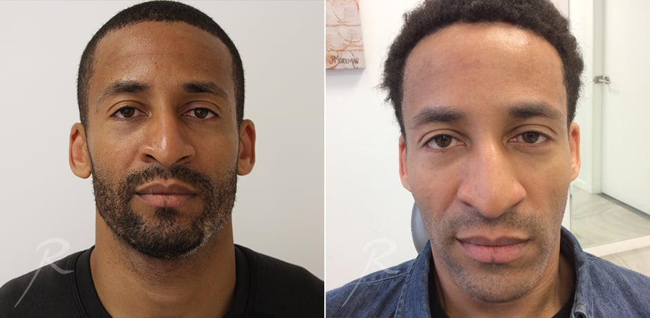 Injectables For Men Before and After Treatment