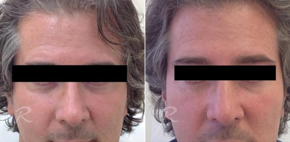 Mens Cosmetic Before And After Pictures Russak Aesthetic Centre