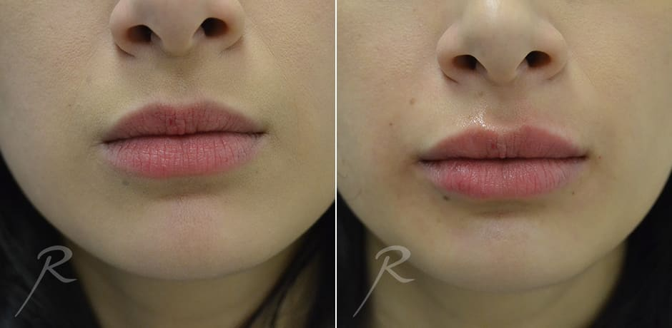 Injectables for Lips - Before and After Treatment