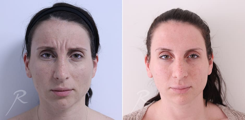 Injectables Neurotoxins - Before and After Treatment
