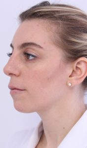 Kybella Treatment - Russak+ Aesthetic Center in New York
