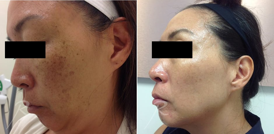 Laser Rejuvanation - Before and After Treatment Picture