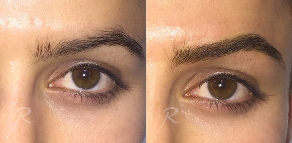 Microblading - Before and After Treatment Pictures