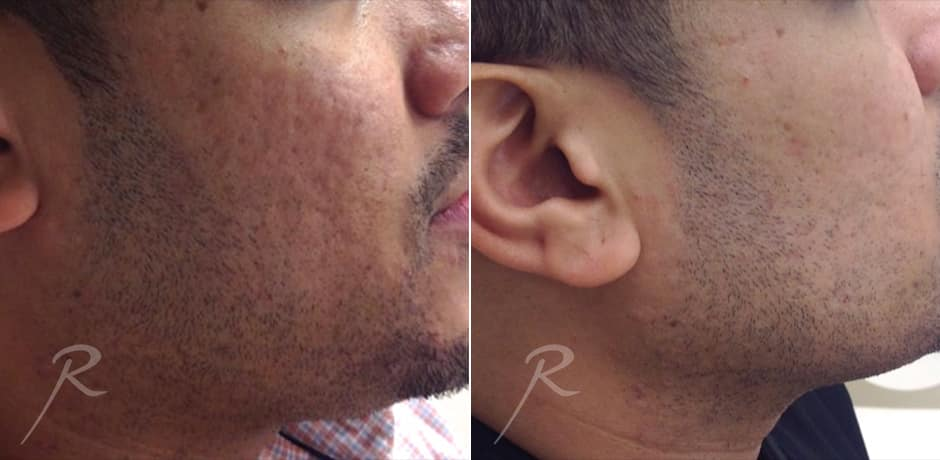 Resurcacing For Men Before and After Treatment