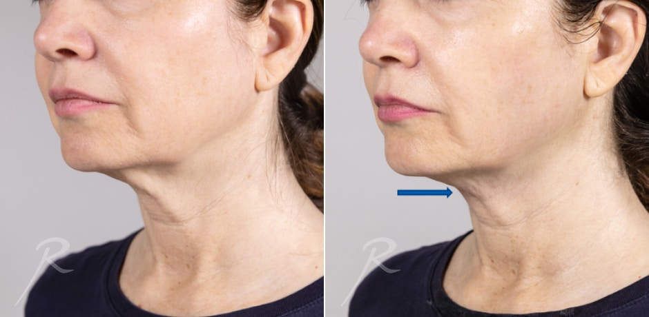 Ultherapy Before and After Treatment