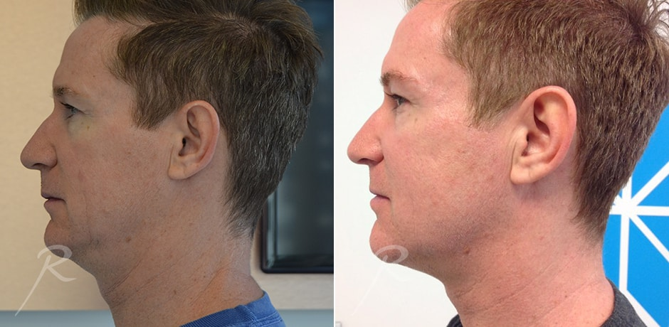 Ultherapy For Men Before and After Treatment