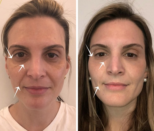 How Injectables Minimize Under Eye Circles and Crow's Feet