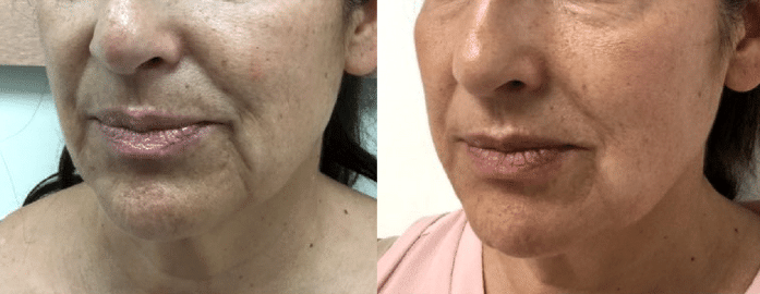 Thread Lift 'Face Lift'