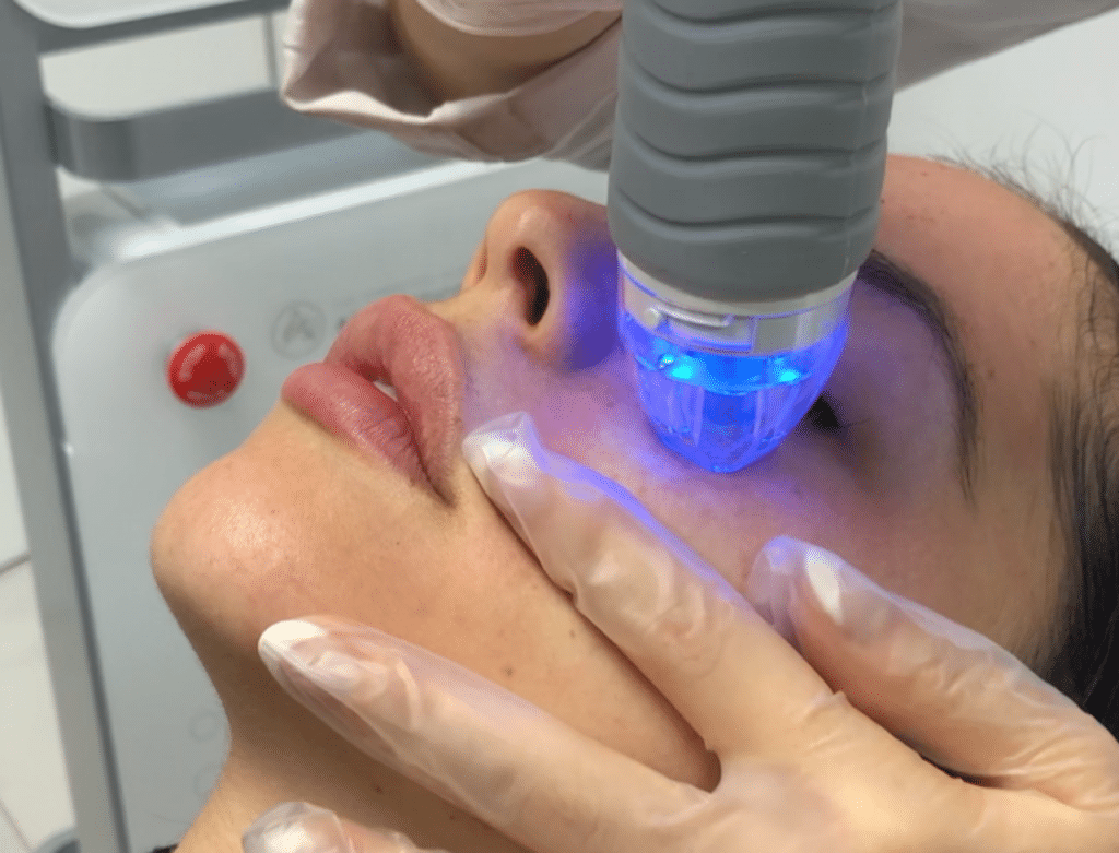 RF Microneedling Vivace New York City