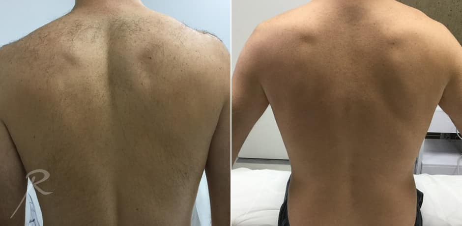 Before and after back laser hair removal for men.