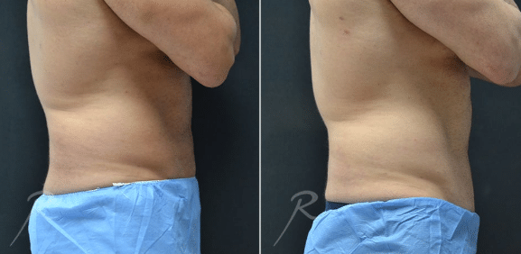CoolSculpting Abdomen Before and After Picture For Men