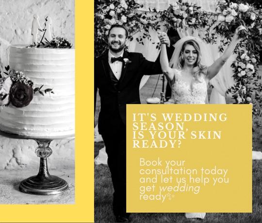 Wedding Season Promo