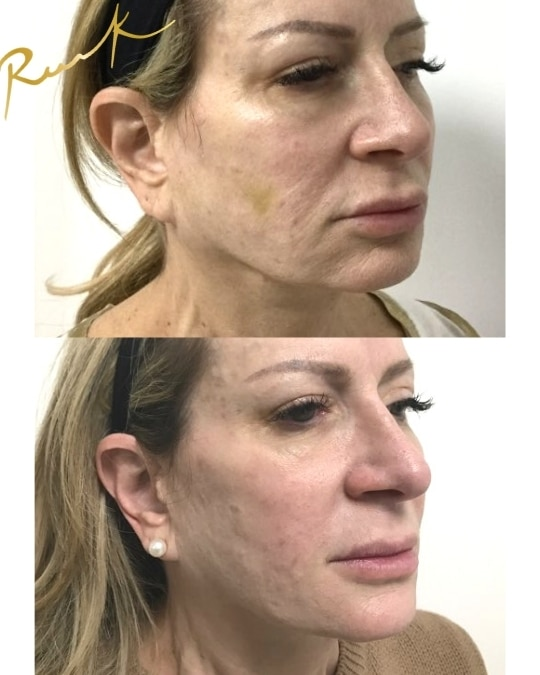 Stem Cell Facelift Before and After Treatment - Russak+ Aesthetic Center in New York